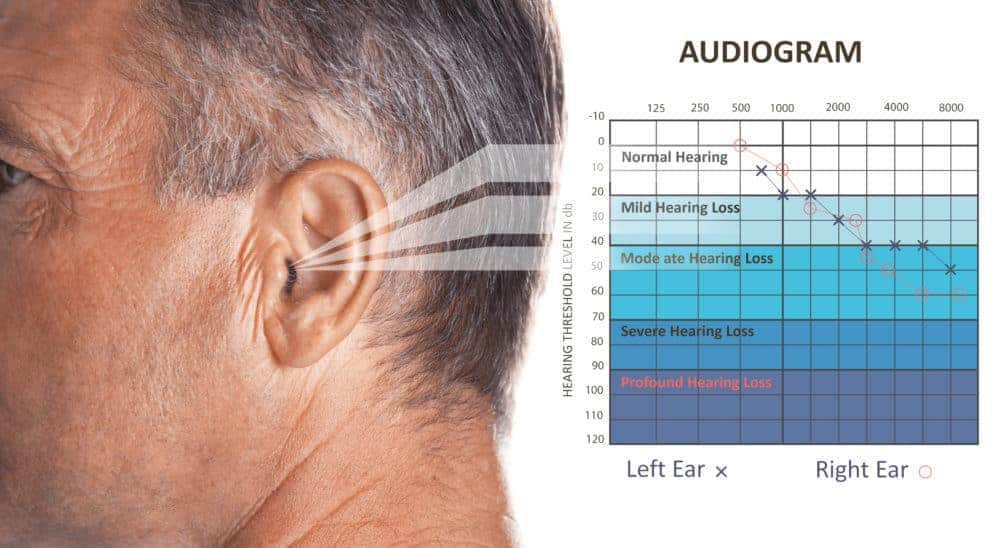 Audiogram with Hearing Loss